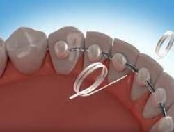 Permanent Retainer Know everything about it